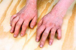 arthritits